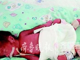 高龄产妇早产生下巴掌大男婴