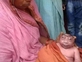 印度女子产下无脑巨眼怪婴